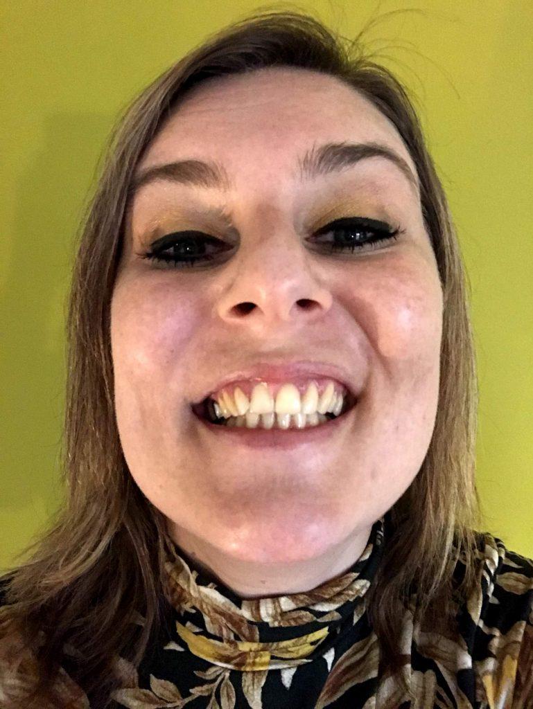Tanden bleken Shylisa Beauty - resultaat na 1 maand